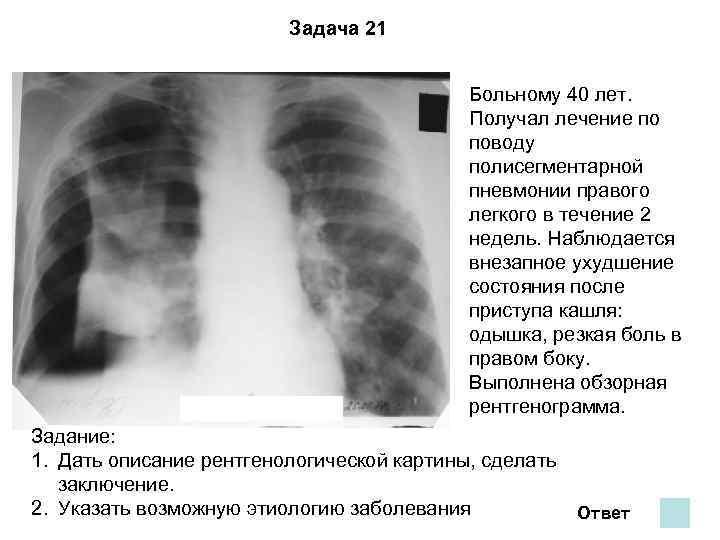 Полисегментарная пневмония: признаки, симптомы, лечение | pnevmonya.ru
