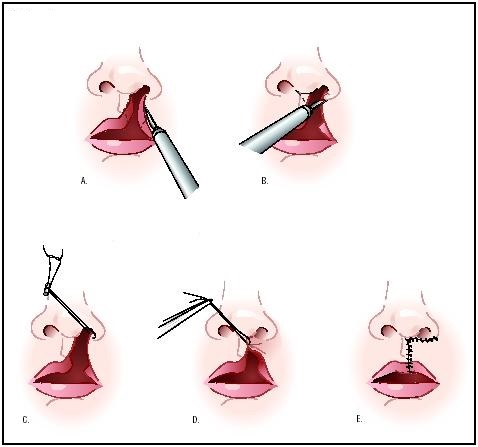 Заячья губа и волчья пасть: причины, диагностика и лечение, фото до и после операции
