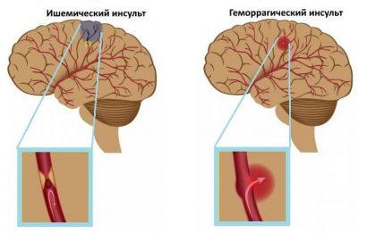 Цереброваскулярная болезнь: симптомы и лечение, причины