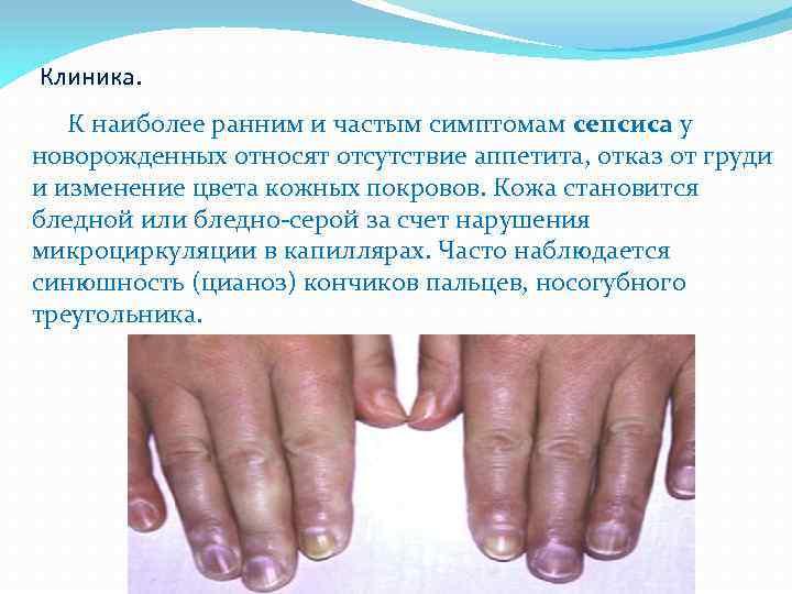 Сепсис, что это? симптомы у взрослых и клинические рекомендации
