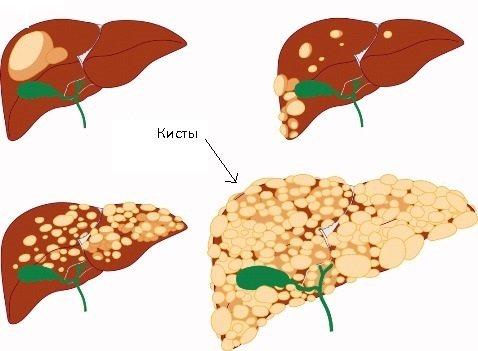 Гемангиома печени: симптомы, виды, лечение
