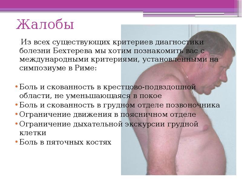Болезнь бехтерева: что это такое анкилозирующий спондилоартрит, симптомы, лечение, у мужчин и женщин, прогноз