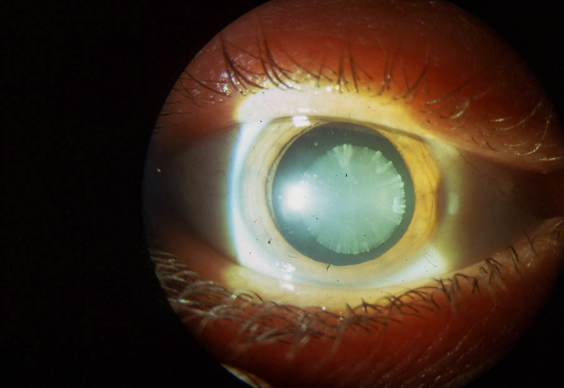 Катаракта глаза: фото, симптомы, лечение, операция