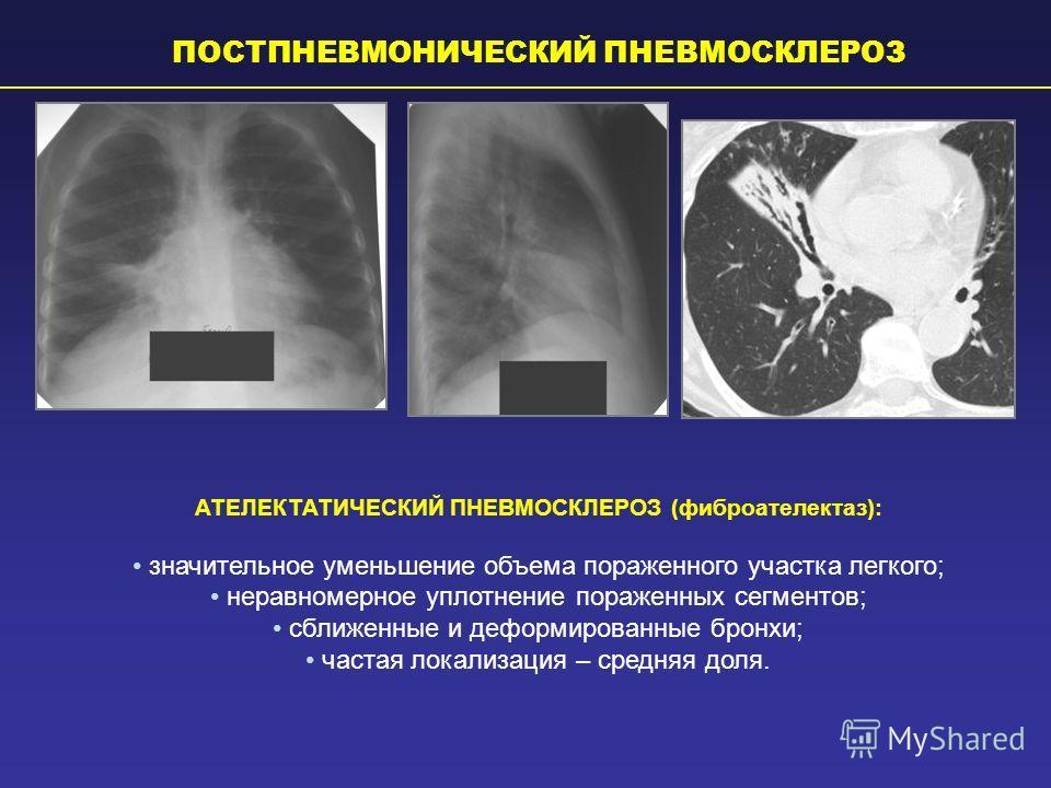 Фиброз легких: лечение народными средствами