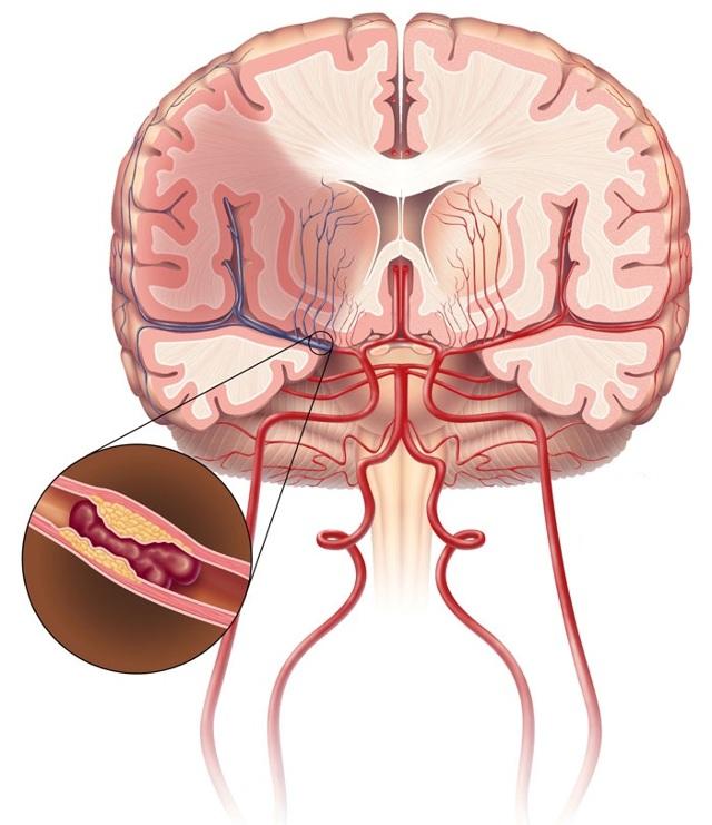 Стволовой инсульт (инсульт ствола головного мозга): симптомы, лечение, прогноз