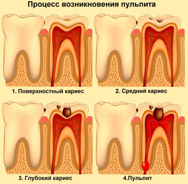 Причины воспаления пульпы зуба - симптомы и причины возникновения пульпита