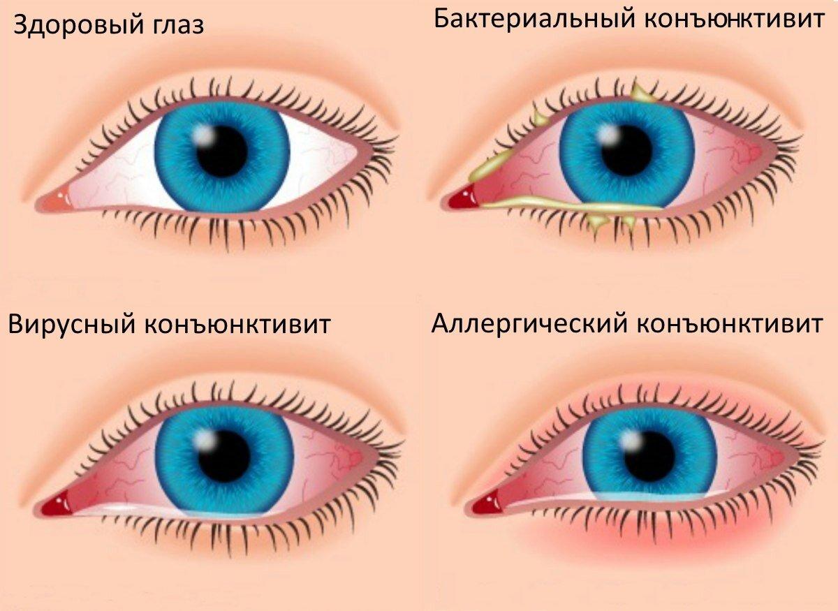 Вирусный конъюнктивит глаз: причины и виды, симптомы и лечение