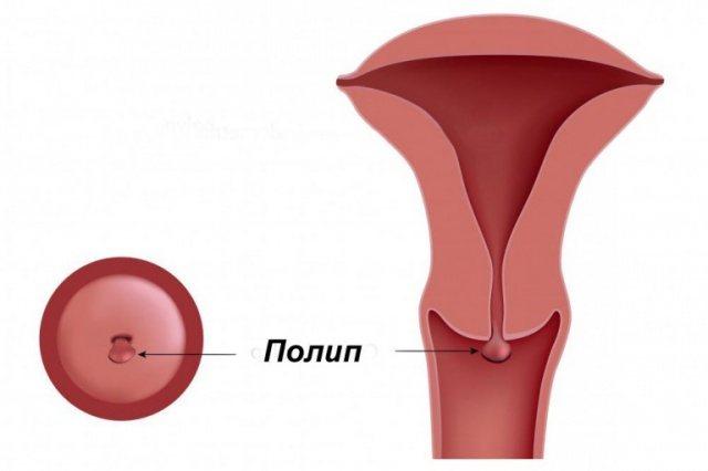 Полип эндометрия в матке: причины появления и способы лечения