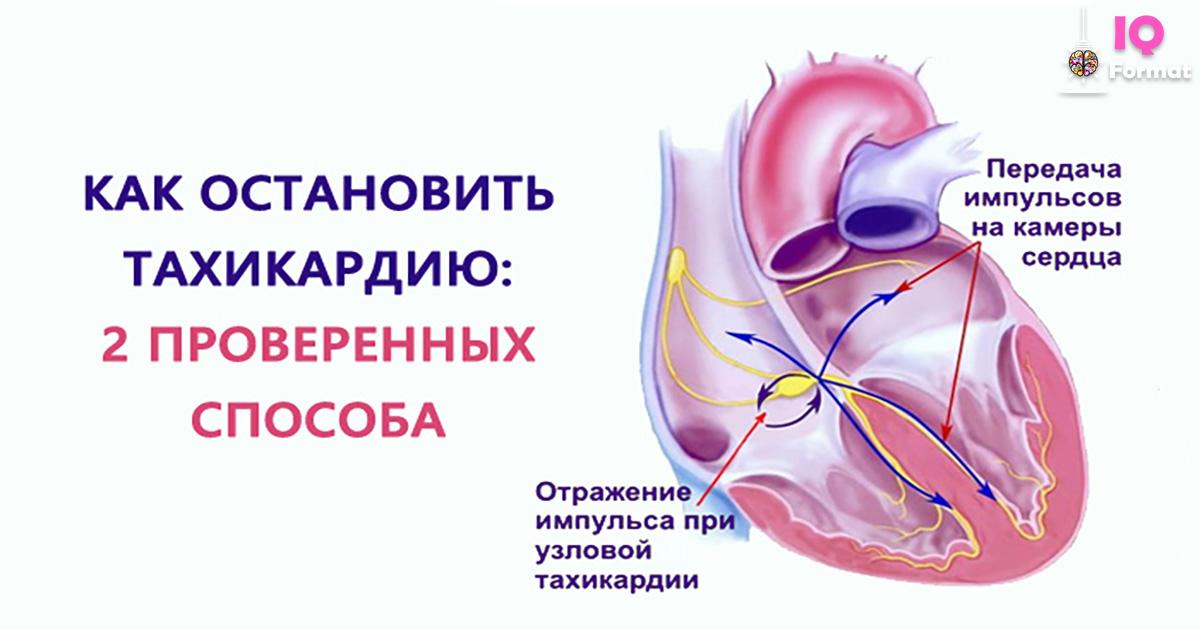 Тахикардия — что это такое, причины, симптомы и лечение. чем опасна тахикардия? лечение тахикардии в домашних условиях
