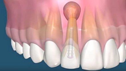 Как и чем лечить кисту в десне зуба: что такое киста зуба, причины возникновения и симптомы, способы лечения