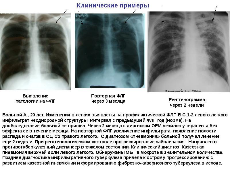 Стадии, виды и формы туберкулеза легких