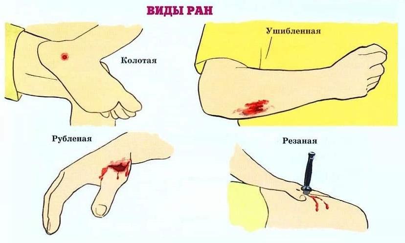 Все о ранах. общие представления о ранах, их разновидностях и методах
