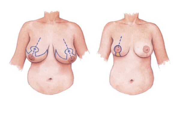 Маммопластика: увеличение и пластика груди в москве.