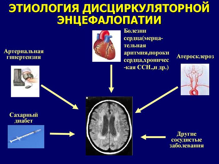Дисциркуляторная энцефалопатия 2 степени: что это такое, симптомы, лечение