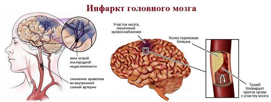 Чем отличается инфаркт от инсульта: в чем разница между закупоркой артерий и нарушением кровообращения головного мозга - doktor-ok.com