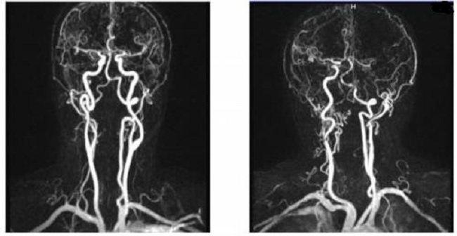 Гипоплазия правой и левой позвоночных артерий: что это, последствия