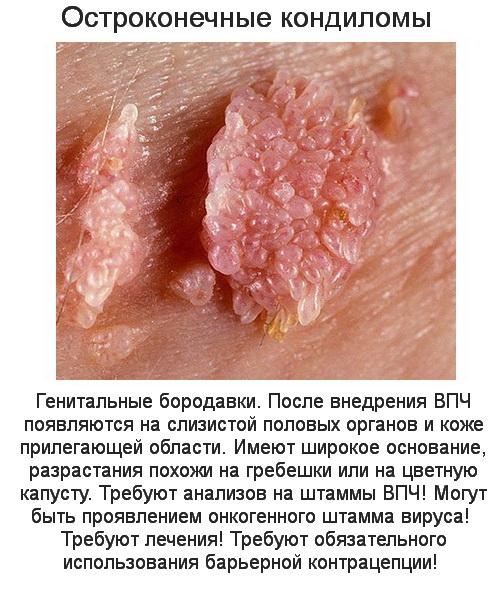 Как выглядит кандилома вирус на фото и как лечить заболевание?