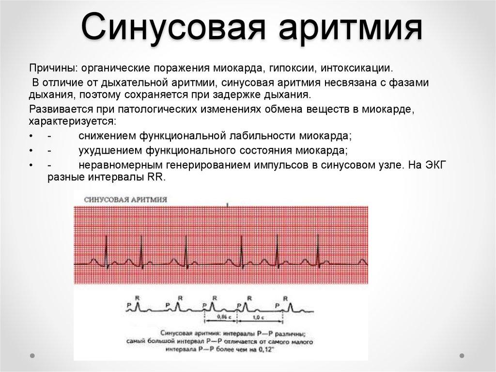 Брадикардия сердца: что это такое и как лечить, причины, симптомы