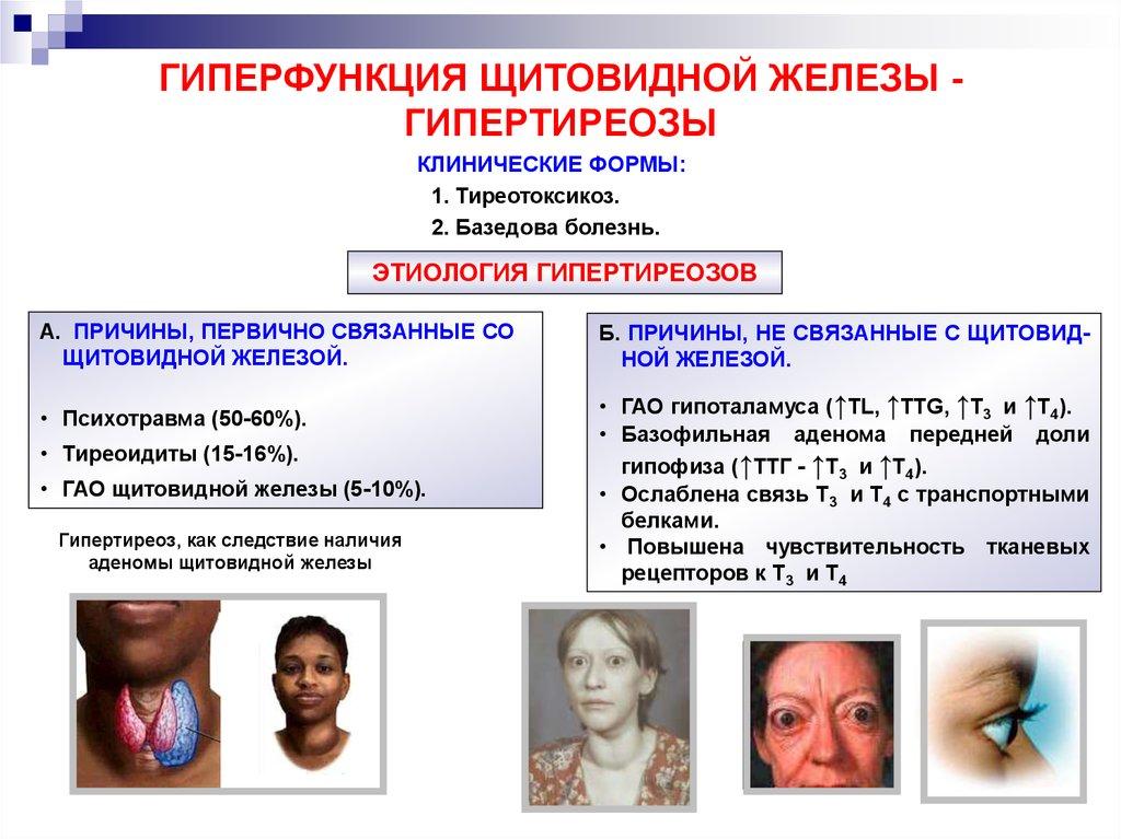 Тиреотоксикоз - лечение, симптомы, причины