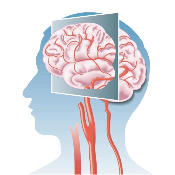Чем опасен инфаркт головного мозга