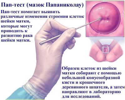 Лечение дисплазии шейки матки первой степени при беременности
