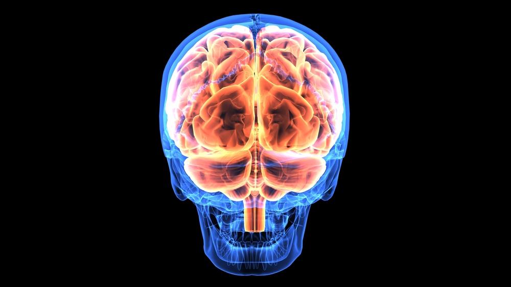 Атеросклероз церебральных сосудов головного мозга