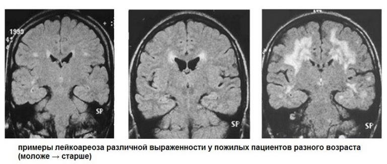 Виды и стадии лейкоареоза головного мозга: диагностика и лечение