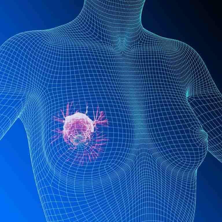 Фиброма - что это такое и чем она опасна, симптомы болезни
