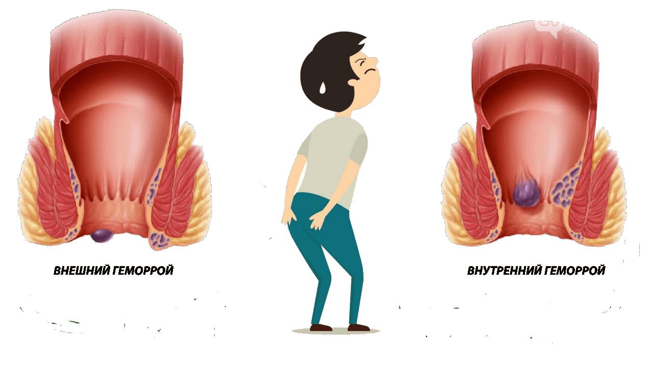 Какие стадии геморроя выделяют в проктологии