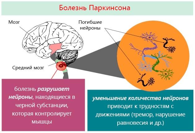 Лечение болезни паркинсона народными средствами: как помочь и не навредить