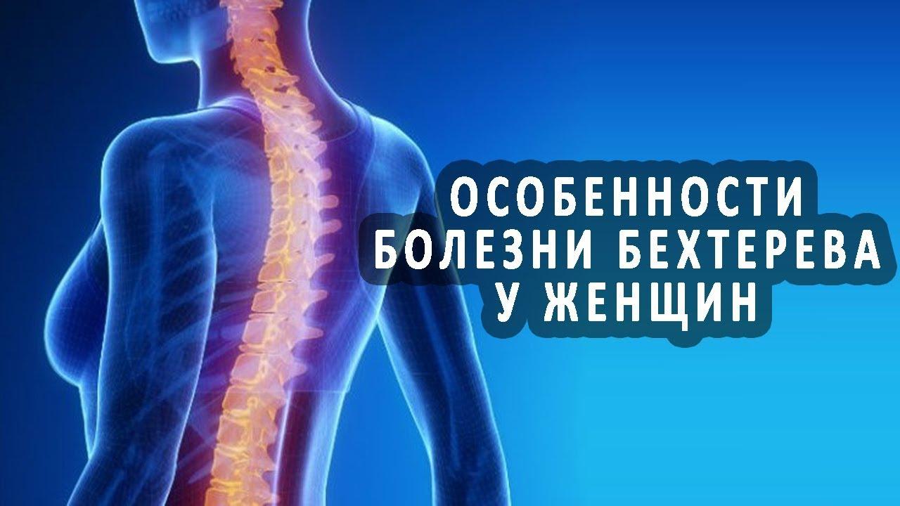 Причины, симптомы и лечение болезни бехтерева – полный обзор