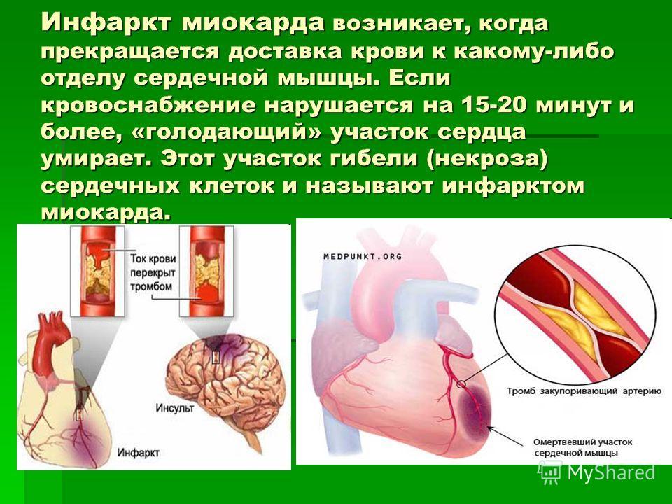 Как распознать инфаркт за месяц до его начала? симптомы и первые признаки