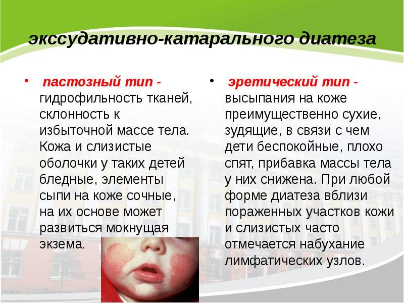 Мочесолевой диатез у детей и взрослых: симптомы и методы лечения