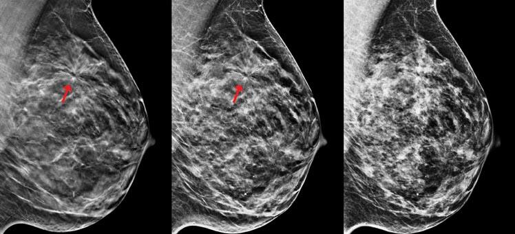 Обзорная маммография: что это такое, как делается