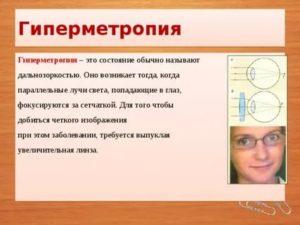 Гиперметропия слабой степени: причины, симптомы, коррекция