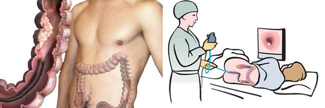 Виртуальная колоноскопия кишечника: подготовка, проведение процедуры, отзывы пациентов и врачей :: syl.ru