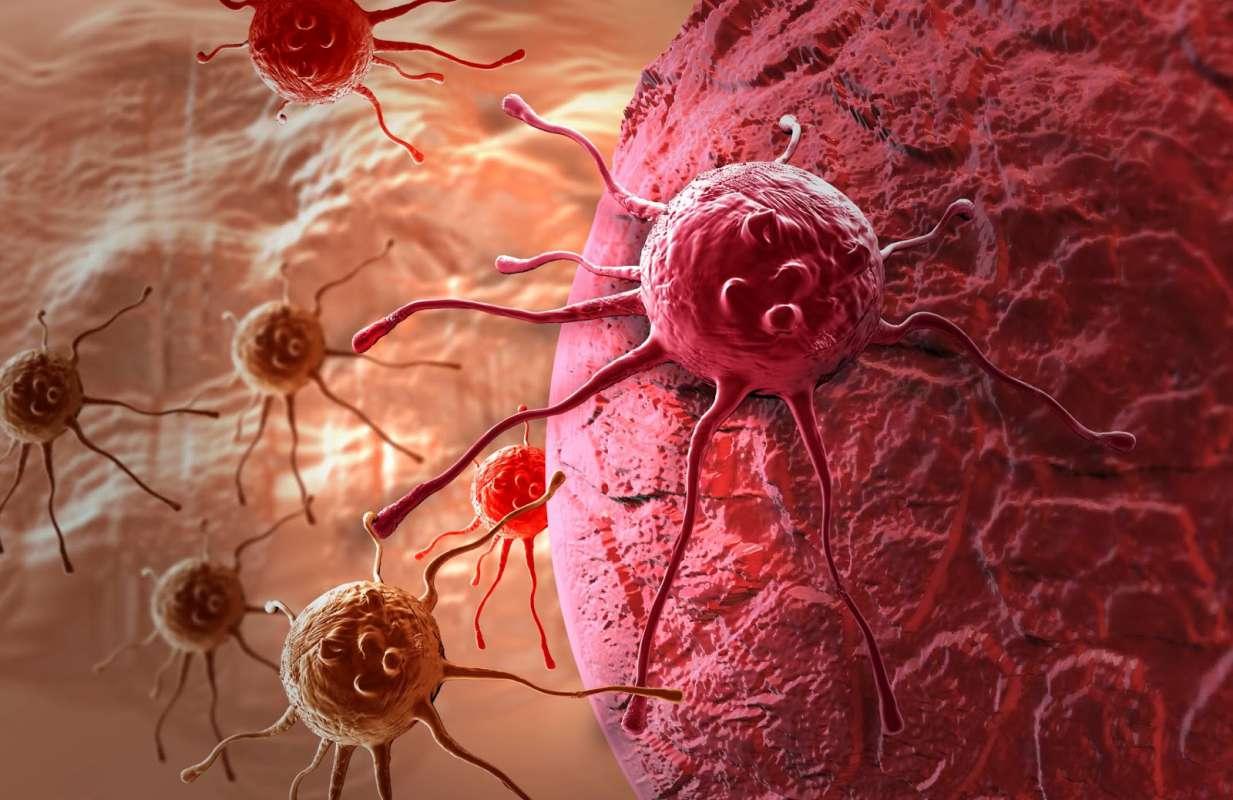 Почему возникает рак? 9 причин возникновения онкологических заболеваний