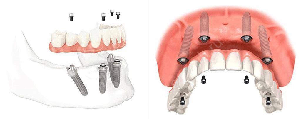 Имплант или имплантат - что это такое и как правильно называется?