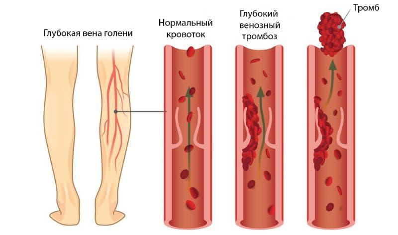 Клинические проявления тромбоза и что такое тромб