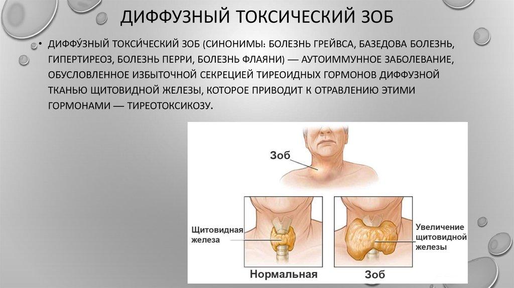 Тиреотоксикоз: симптомы и лечение