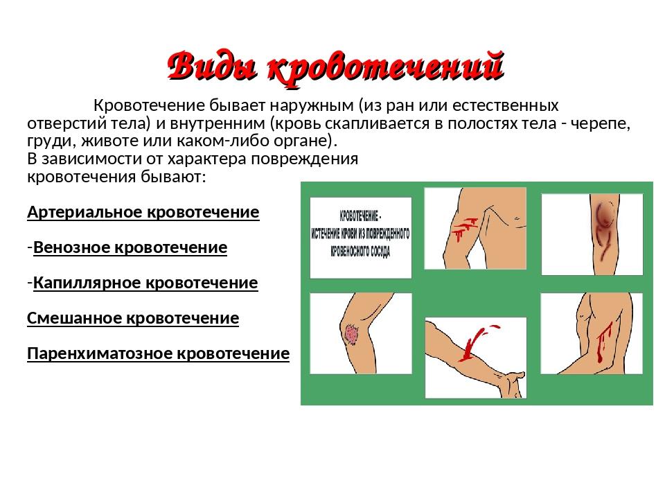 Кровотечение смешанное: первая помощь при, это, признаки