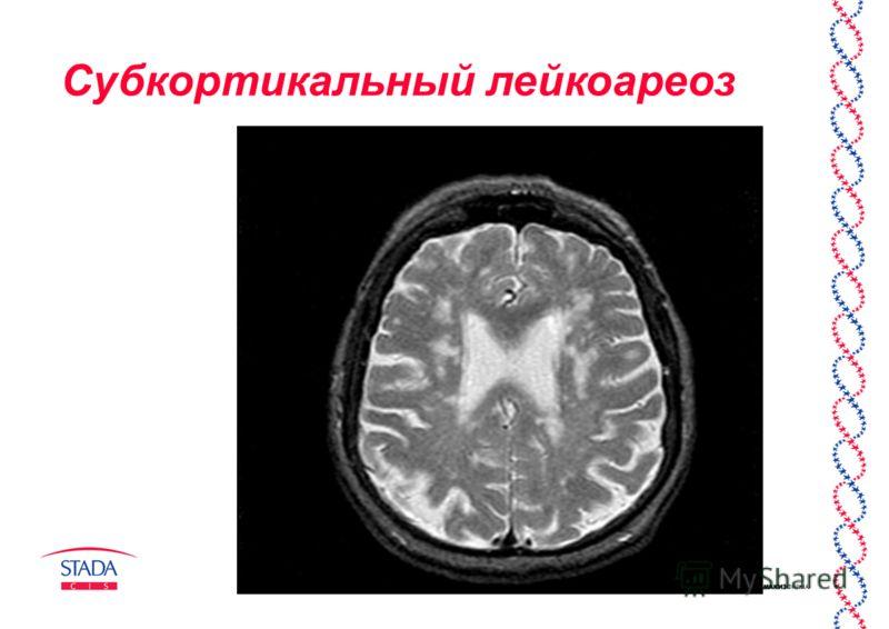 Все про лейкоареоз головного мозга