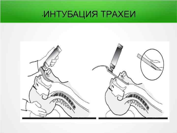 Интубация - это введение трубки в трахею