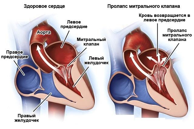 Пмк с регургитацией 1 степени - здоров.сердцем
