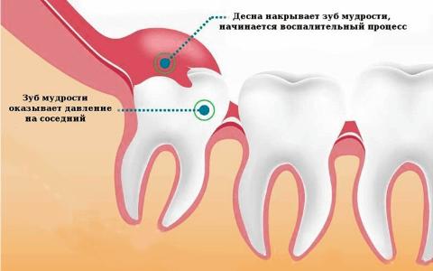 Удаление ретинированного и дистопированного зуба (в том числе мудрости): что это, ретинированный клык