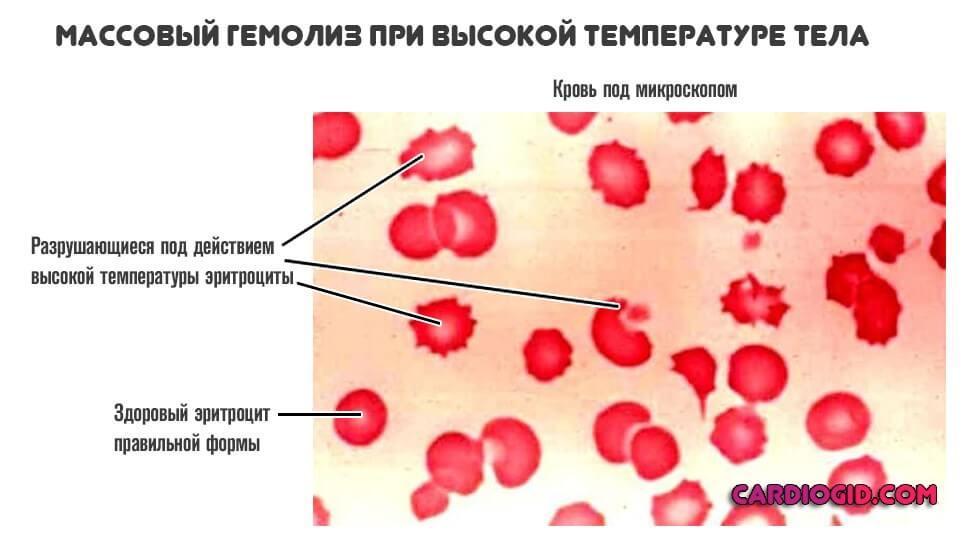 Гемолиз крови: причины возникновения
