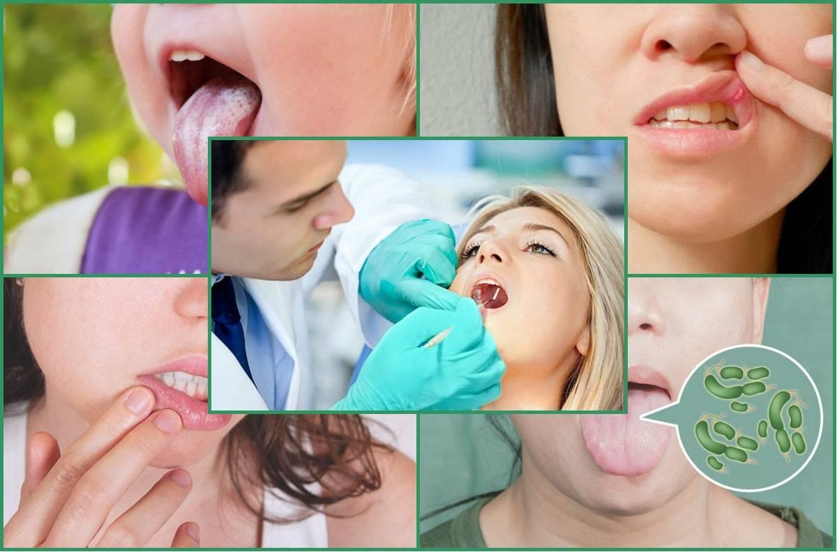 Санация полости рта, что это   полезные знания для всех