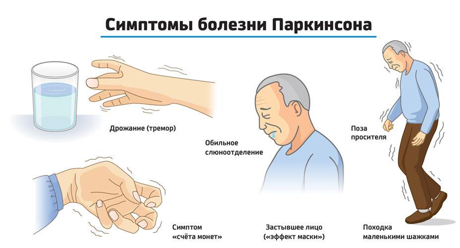 Болезнь паркинсона - симптомы, лечение, причины возникновения, течение