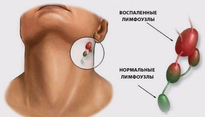 Воспаление лимфоузлов: причины заболевания, симптомы и лечение