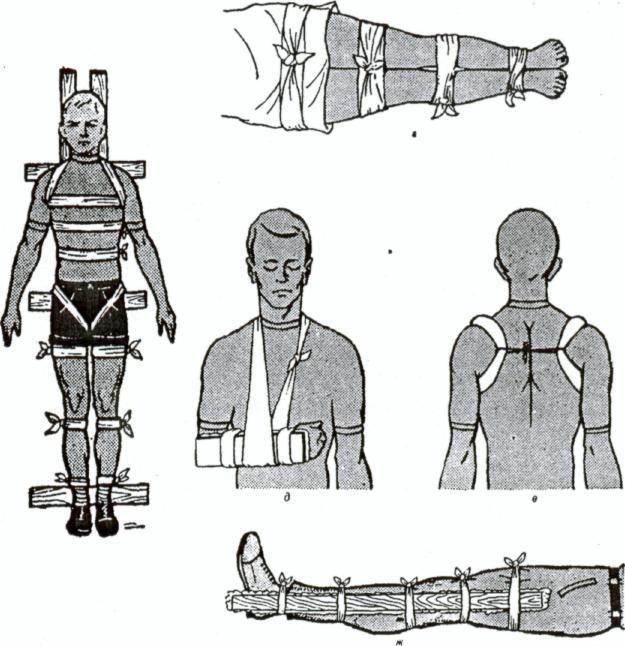 Иммобилизация при переломах костей плеча, позвоночника, таза, кисти, голени